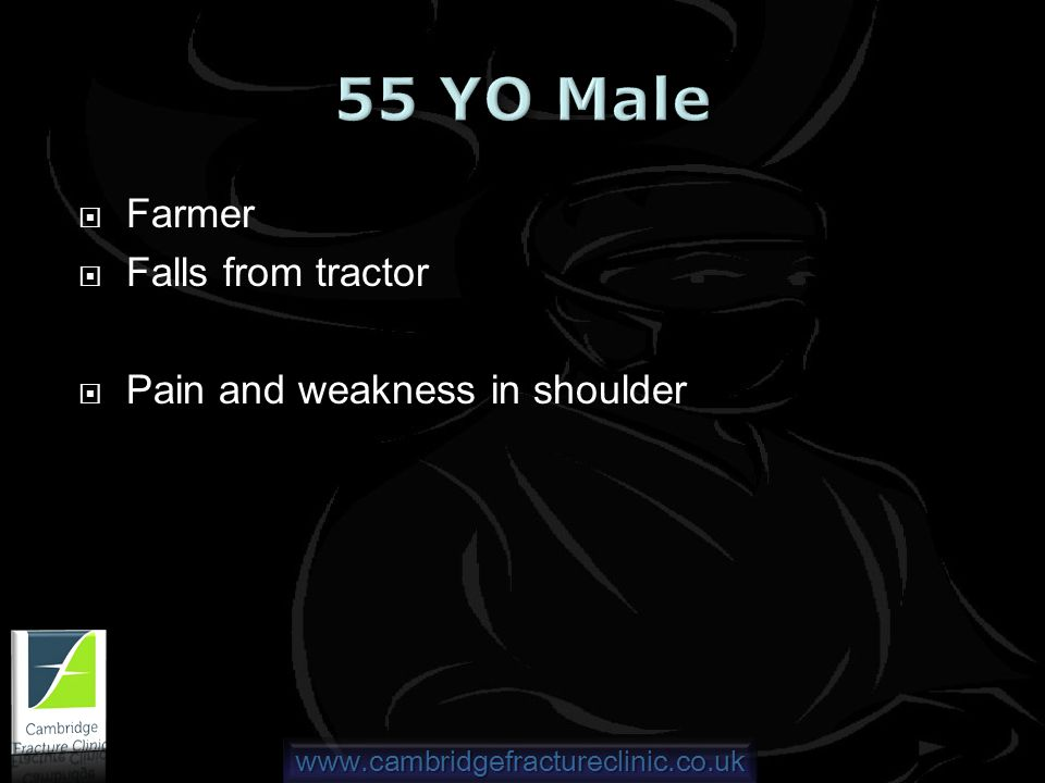 www.cambridgefractureclinic.co.uk Farmer Falls from tractor Pain and weakness in shoulder