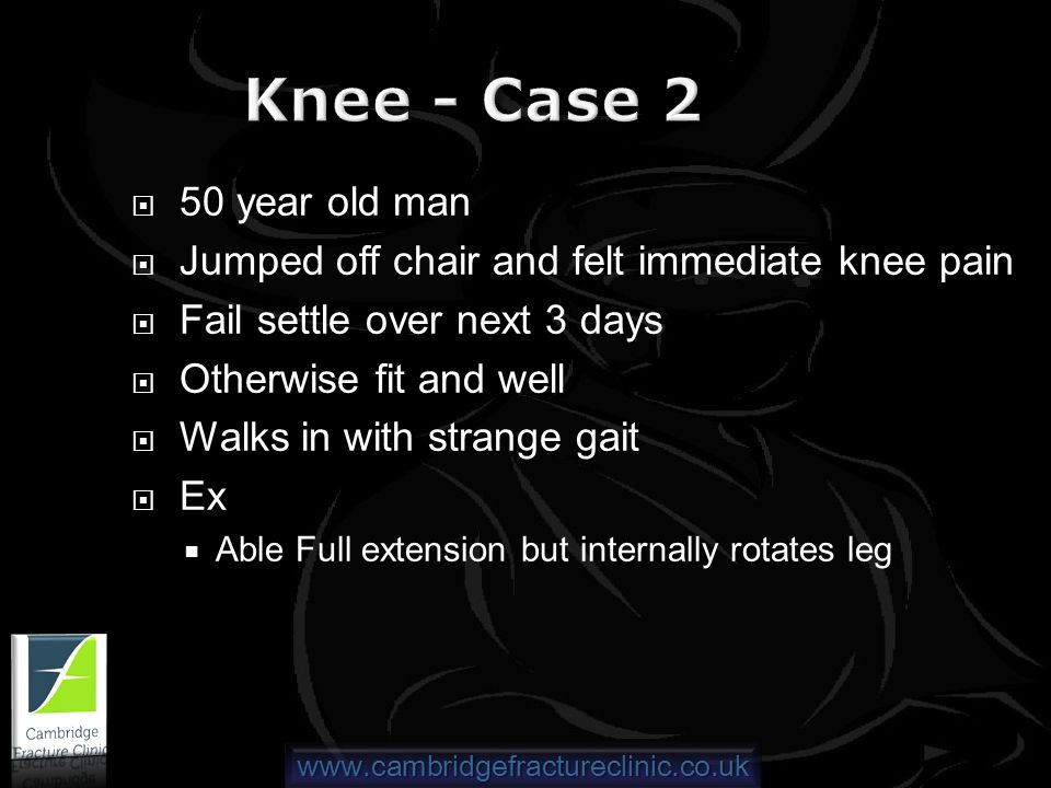 www.cambridgefractureclinic.co.uk Knee - Case 2 50 year old man Jumped off chair and felt immediate knee pain Fail settle over next 3 days Otherwise fit and well Walks in with strange gait Ex Able Full extension but internally rotates leg
