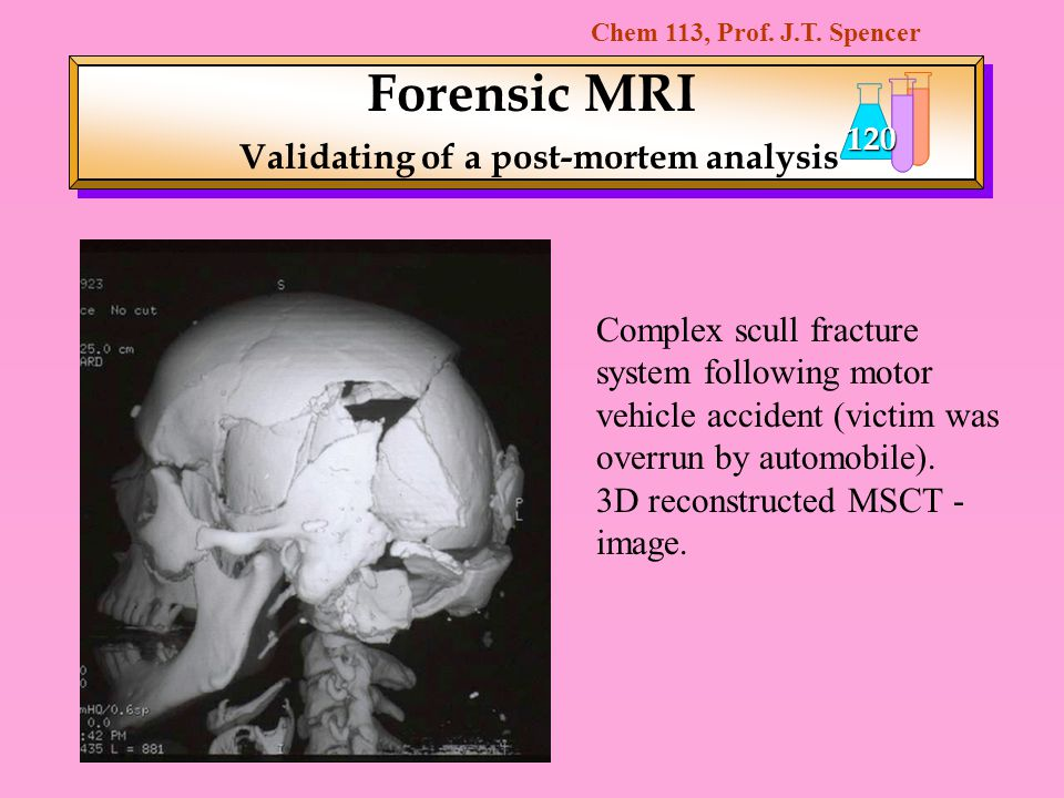 Chem 113, Prof. J.T. Spencer 120 Forensic MRI Validating of a post-mortem analysis Complex scull fracture system following motor vehicle accident (vic