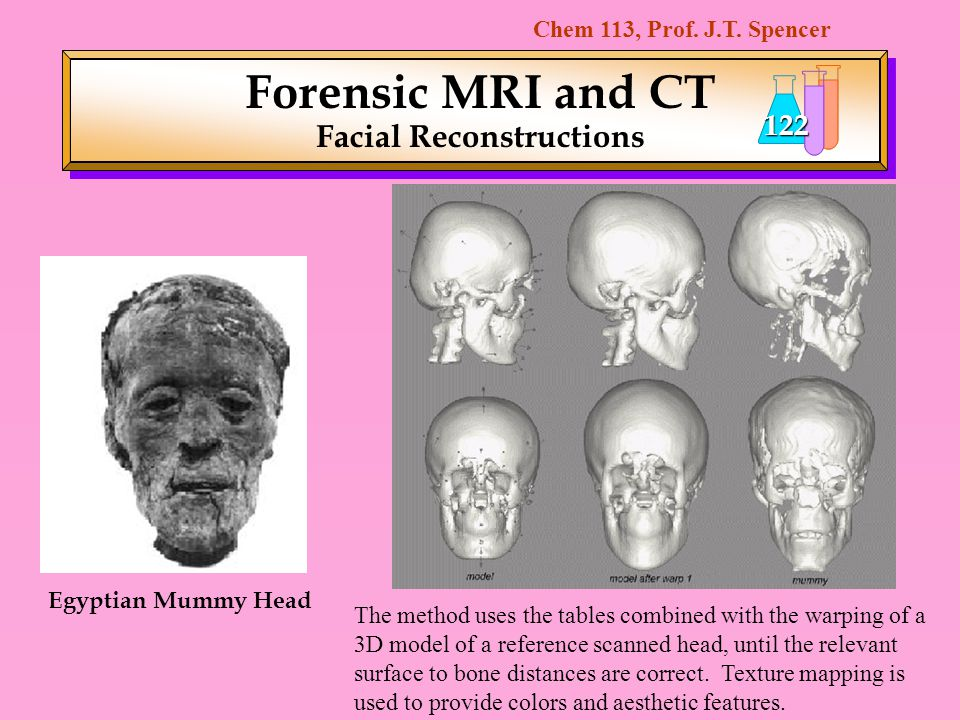 Chem 113, Prof. J.T. Spencer 122 Forensic MRI and CT Facial Reconstructions Egyptian Mummy Head The method uses the tables combined with the warping o