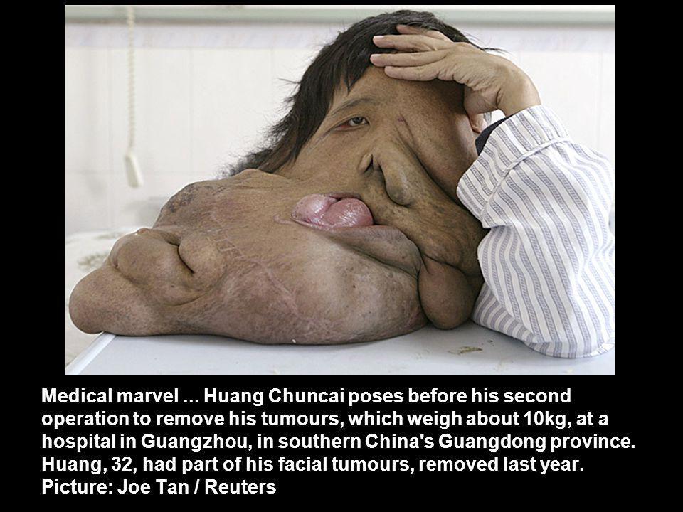 Medical marvel...