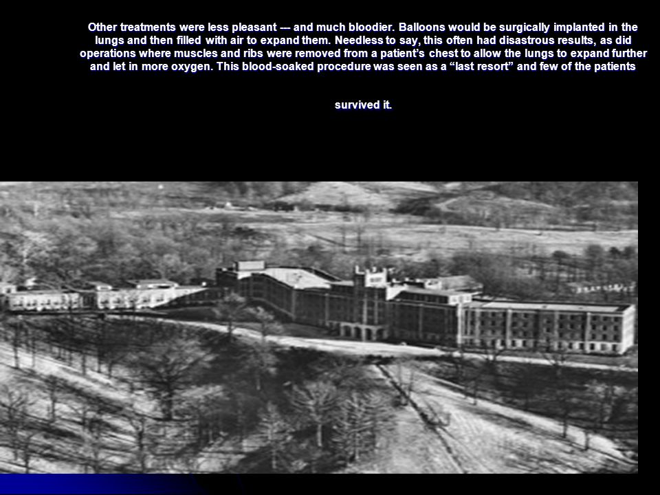 One of the most talked about and famous aspects of the Waverly Hills Sanatorium is the Body Chute or Death Tunnel.