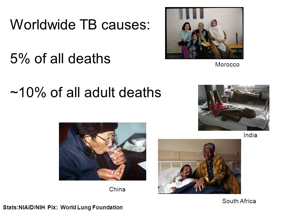 Stats:NIAID/NIH Pix: World Lung Foundation Worldwide TB causes: 5% of all deaths ~10% of all adult deaths Morocco India South Africa China