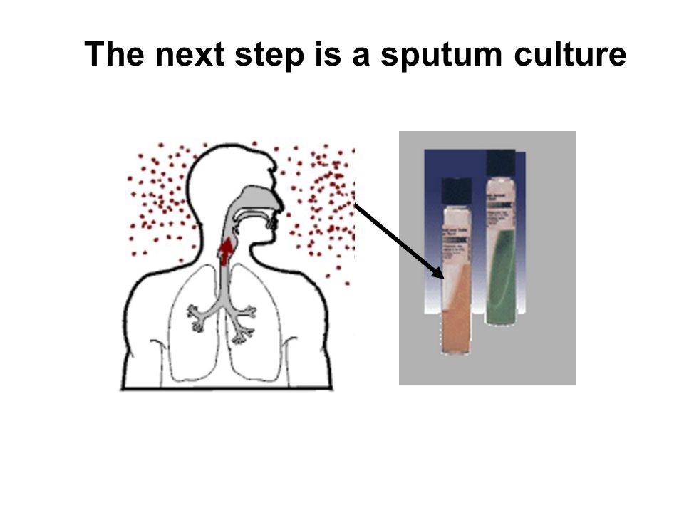 The next step is a sputum culture