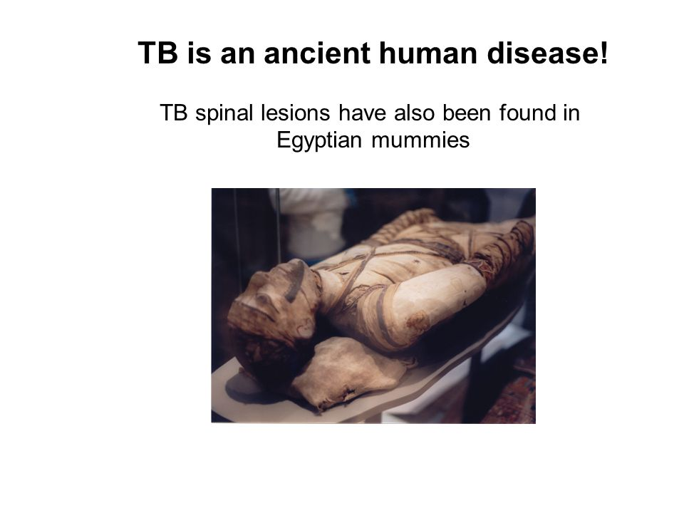 TB is an ancient human disease! TB spinal lesions have also been found in Egyptian mummies