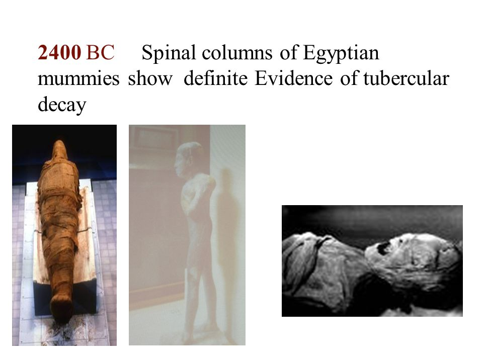 2400 BC Spinal columns of Egyptian mummies show definite Evidence of tubercular decay