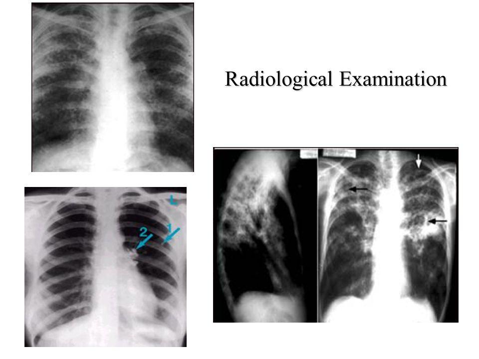 Radiological Examination