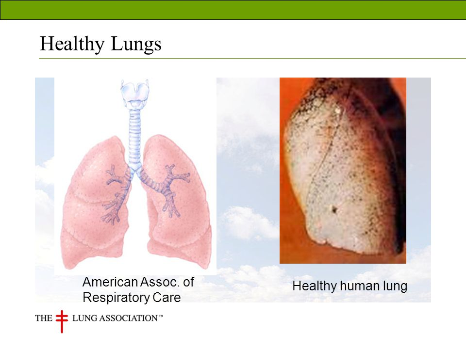 Occupational Lung Health Monitoring Questionnaires Chest x-rays Lung function tests (spirometry) Fitness to wear respirator testing