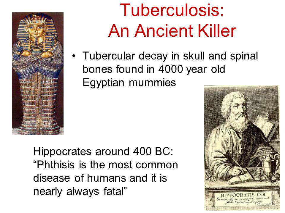 Tuberculosis: An Ancient Killer Tubercular decay in skull and spinal bones found in 4000 year old Egyptian mummies Hippocrates around 400 BC: Phthisis is the most common disease of humans and it is nearly always fatal