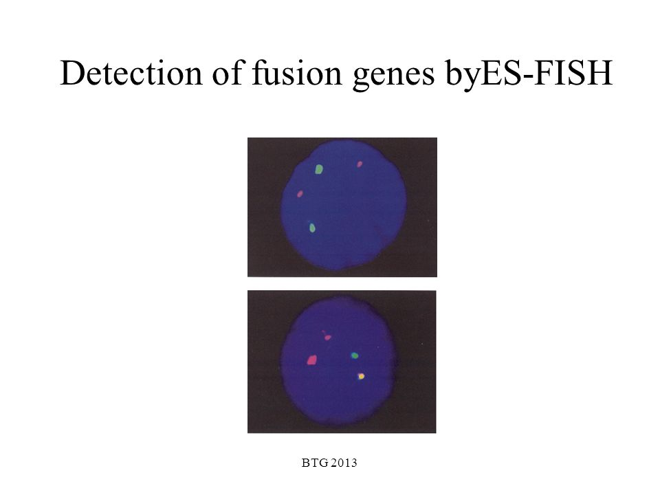 BTG 2013 Detection of fusion genes byES-FISH