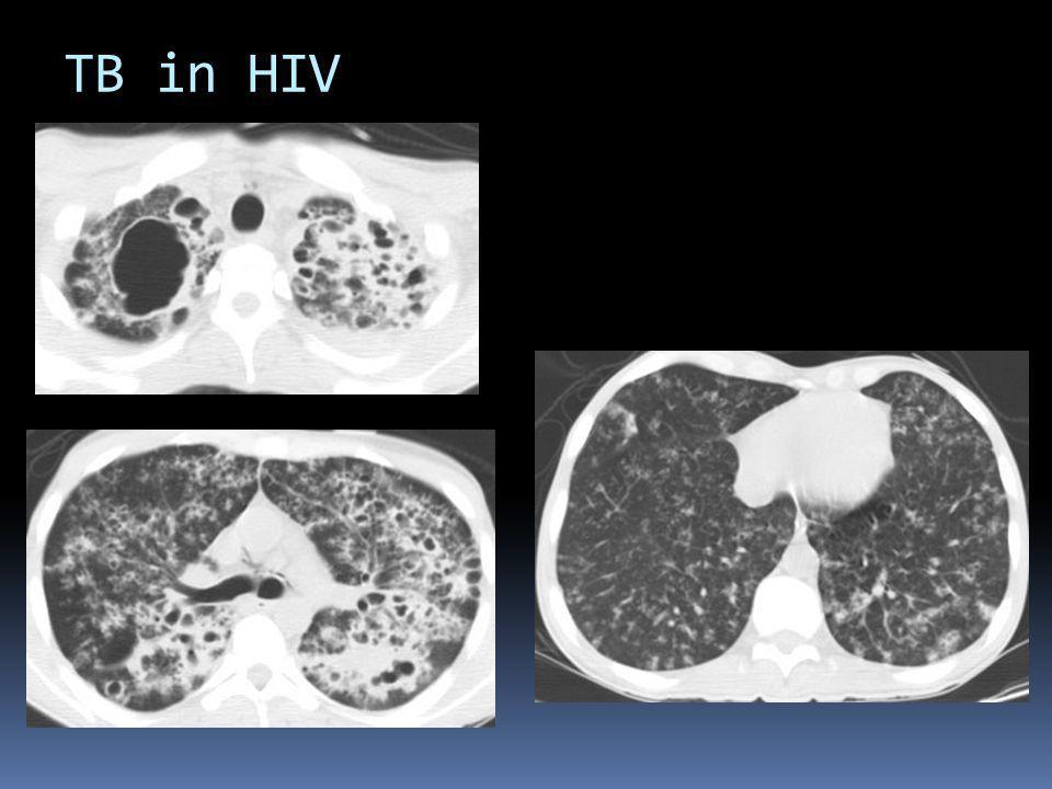TB in HIV