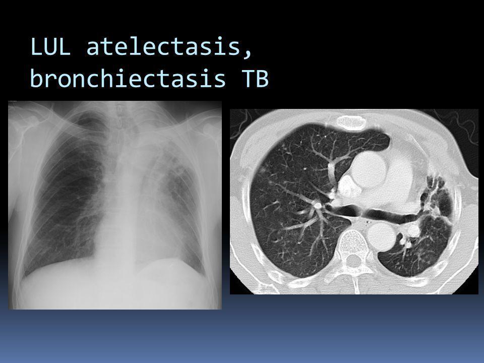 LUL atelectasis, bronchiectasis TB