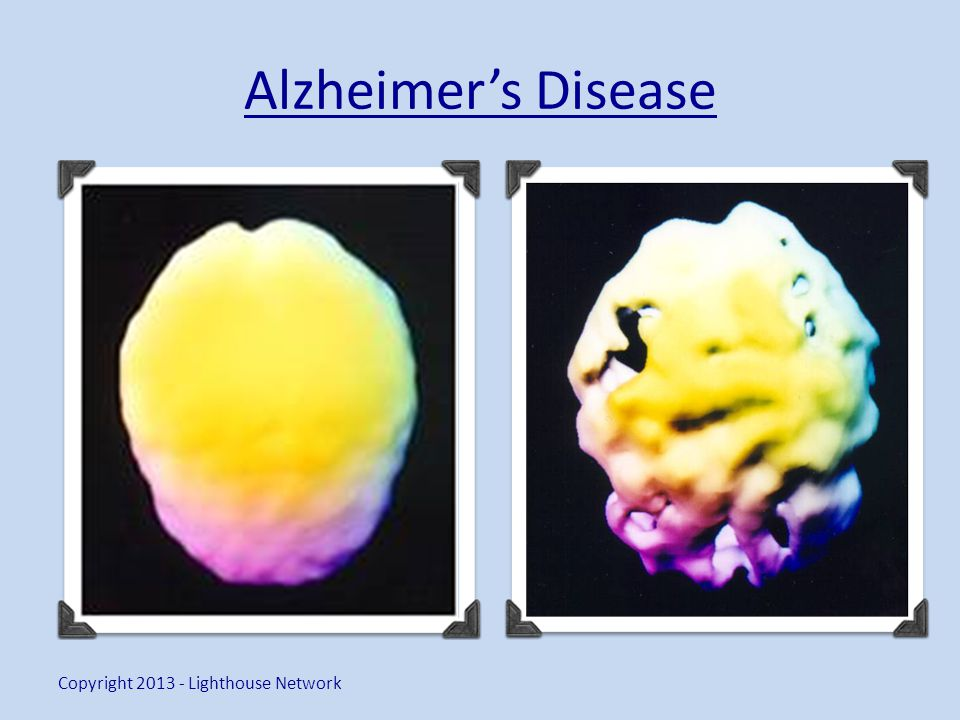 Alzheimers Disease Copyright 2013 - Lighthouse Network