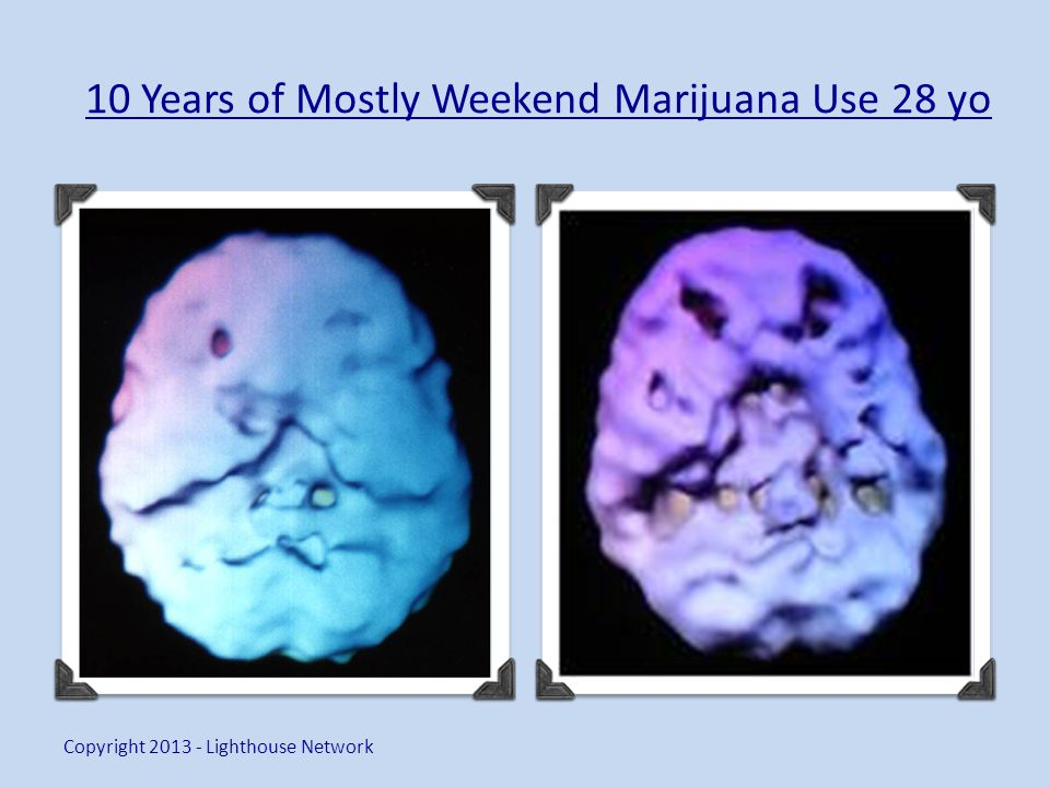 10 Years of Mostly Weekend Marijuana Use 28 yo Copyright 2013 - Lighthouse Network