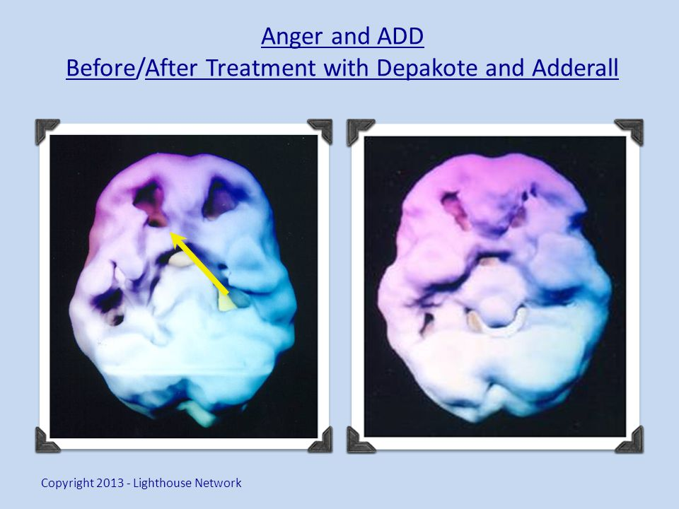 Anger and ADD Before/After Treatment with Depakote and Adderall Copyright 2013 - Lighthouse Network