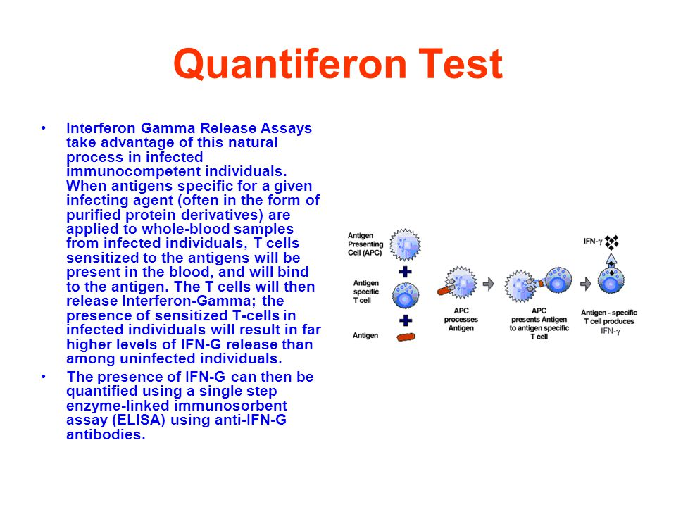 Quantiferon Test Interferon Gamma Release Assays take advantage of this natural process in infected immunocompetent individuals.