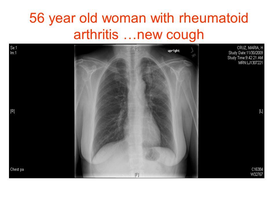 56 year old woman with rheumatoid arthritis …new cough