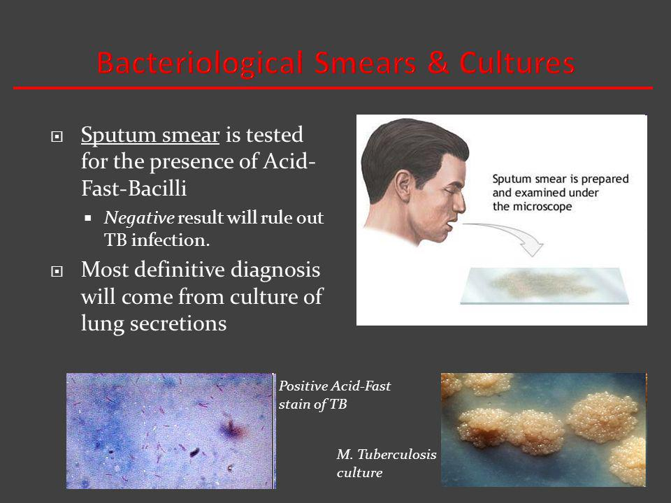 Sputum smear is tested for the presence of Acid- Fast-Bacilli Negative result will rule out TB infection.