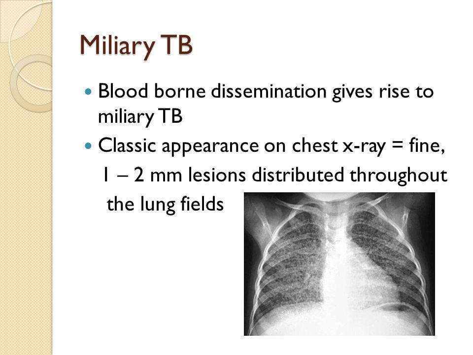 Miliary TB Blood borne dissemination gives rise to miliary TB Classic appearance on chest x-ray = fine, 1 – 2 mm lesions distributed throughout the lu