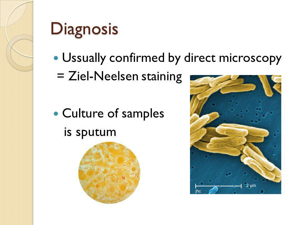 Diagnosis Ussually confirmed by direct microscopy = Ziel-Neelsen staining Culture of samples is sputum