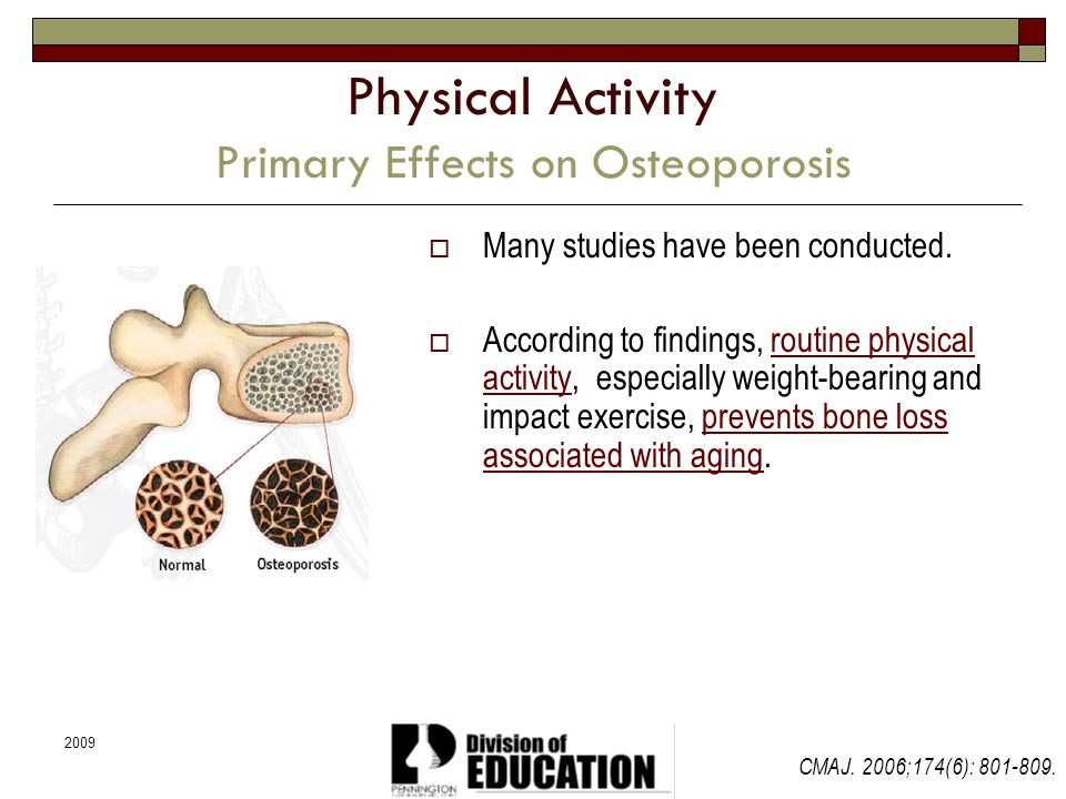 2009 Physical Activity Primary Effects on Osteoporosis Many studies have been conducted. According to findings, routine physical activity, especially