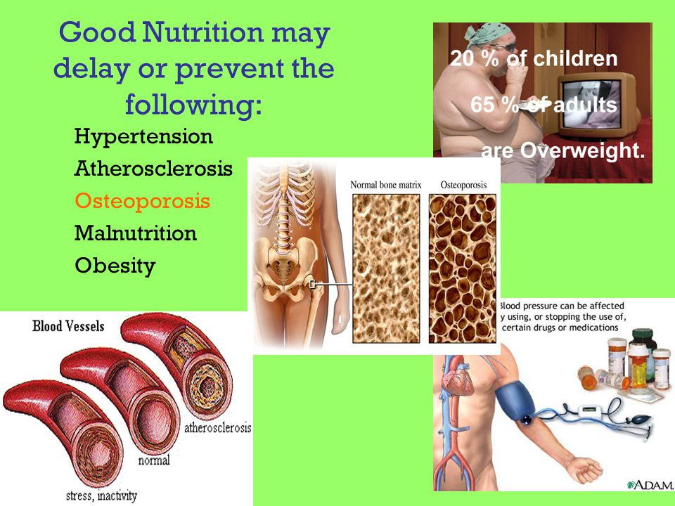 Good Nutrition may delay or prevent the following: Hypertension Atherosclerosis Osteoporosis Malnutrition Obesity