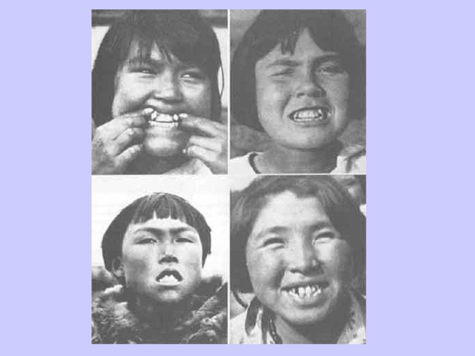 1 st Gen Eskimos