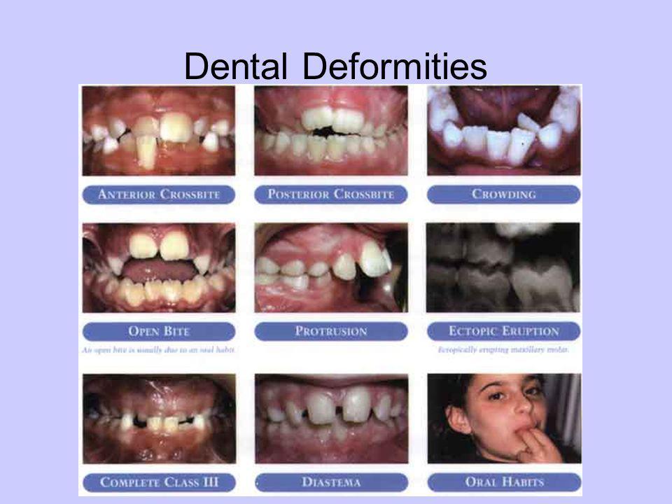 Dental Deformities