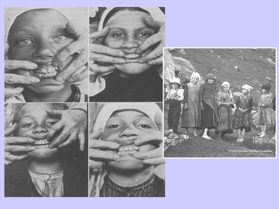 Primitive Swiss Villagers