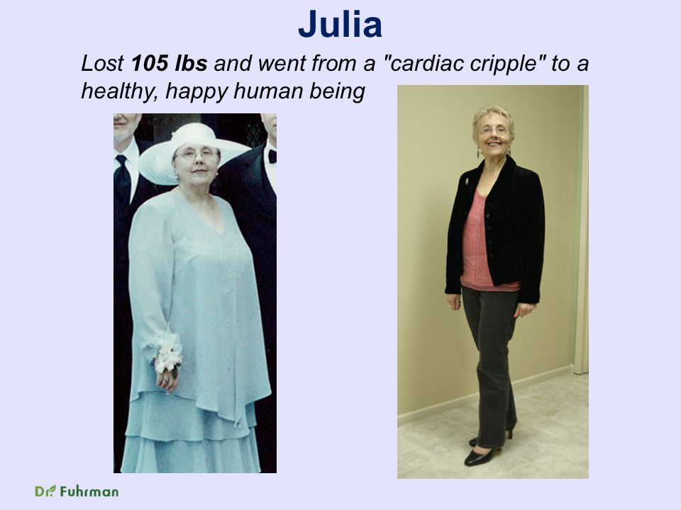 Julia Lost 105 lbs and went from a cardiac cripple to a healthy, happy human being