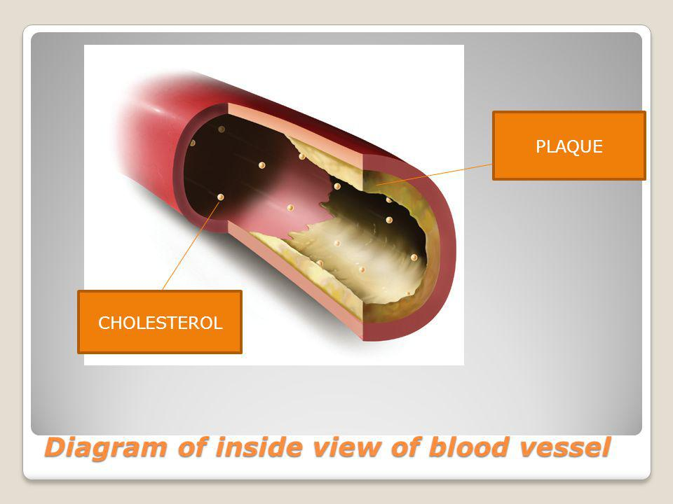 Diagram of inside view of blood vessel CHOLESTEROL PLAQUE