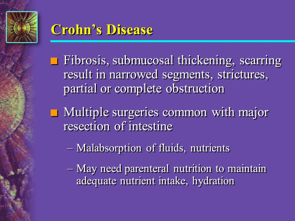 Crohns Disease n Fibrosis, submucosal thickening, scarring result in narrowed segments, strictures, partial or complete obstruction n Multiple surgeri