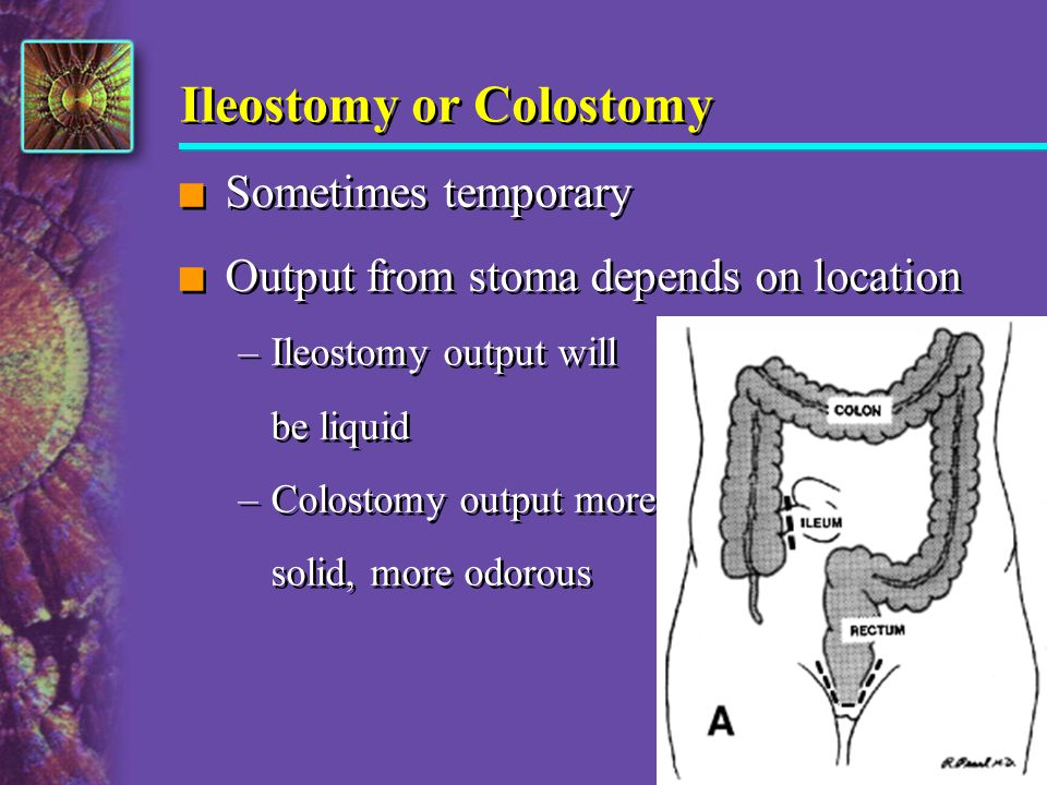 Ileostomy or Colostomy n Sometimes temporary n Output from stoma depends on location –Ileostomy output will be liquid –Colostomy output more solid, mo