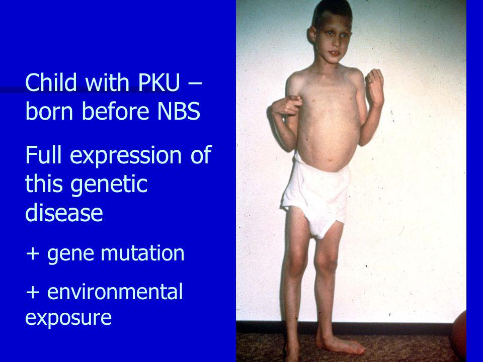 Child with PKU – born before NBS Full expression of this genetic disease + gene mutation + environmental exposure