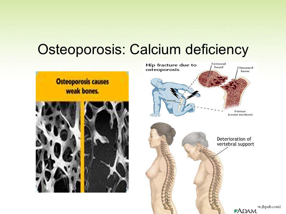 Osteoporosis: Calcium deficiency
