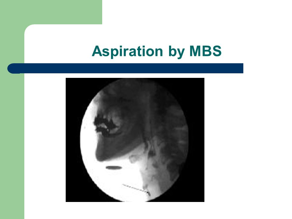Aspiration by MBS