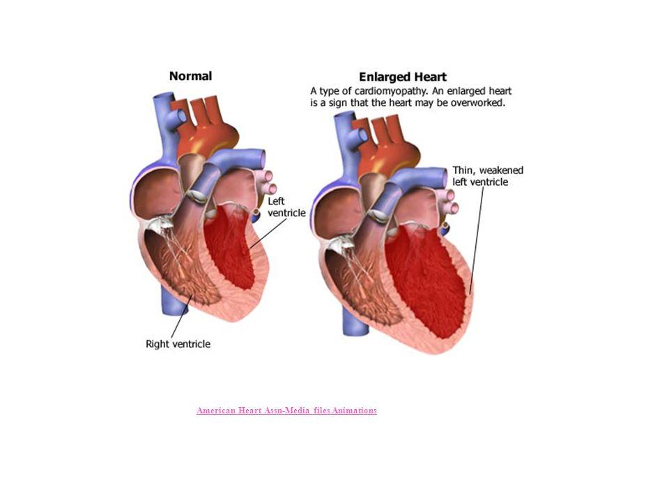 American Heart Assn-Media files Animations