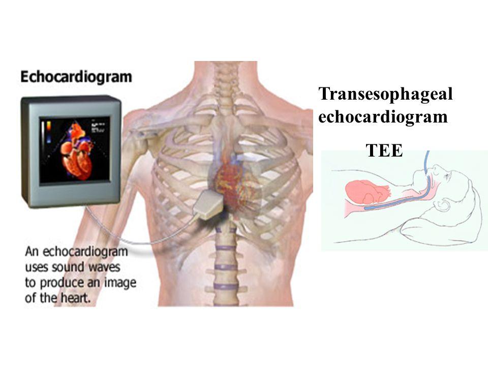 Transesophageal echocardiogram TEE
