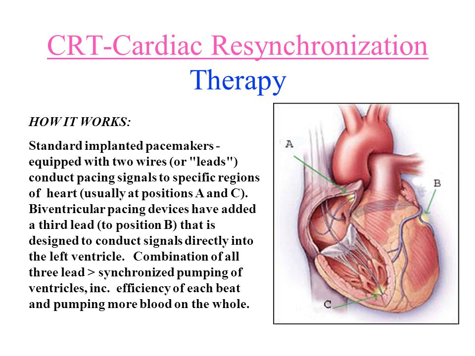 CRT-Cardiac Resynchronization CRT-Cardiac Resynchronization Therapy HOW IT WORKS: Standard implanted pacemakers - equipped with two wires (or