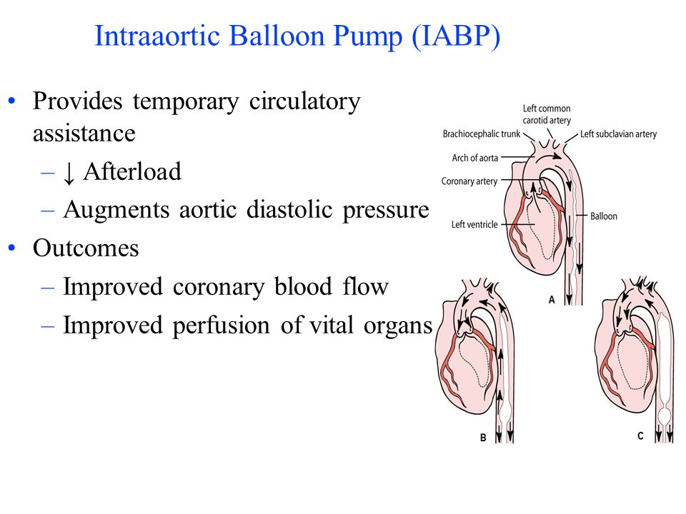 Intraaortic Balloon Pump (IABP) Provides temporary circulatory assistance – Afterload –Augments aortic diastolic pressure Outcomes –Improved coronary