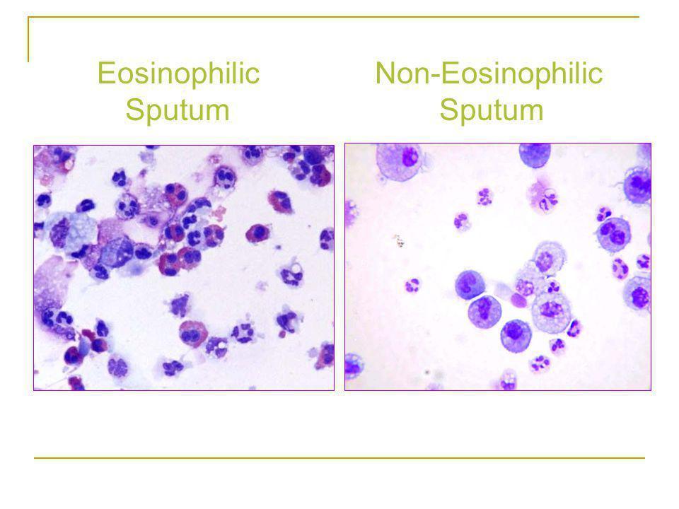 Eosinophilic Sputum Non-Eosinophilic Sputum