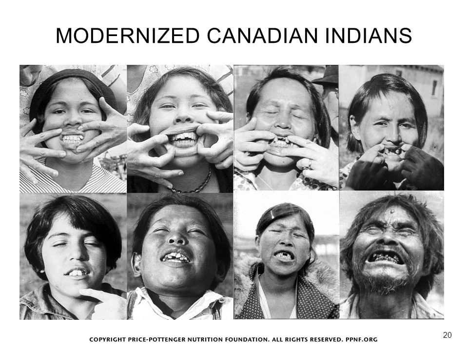 MODERNIZED CANADIAN INDIANS 20