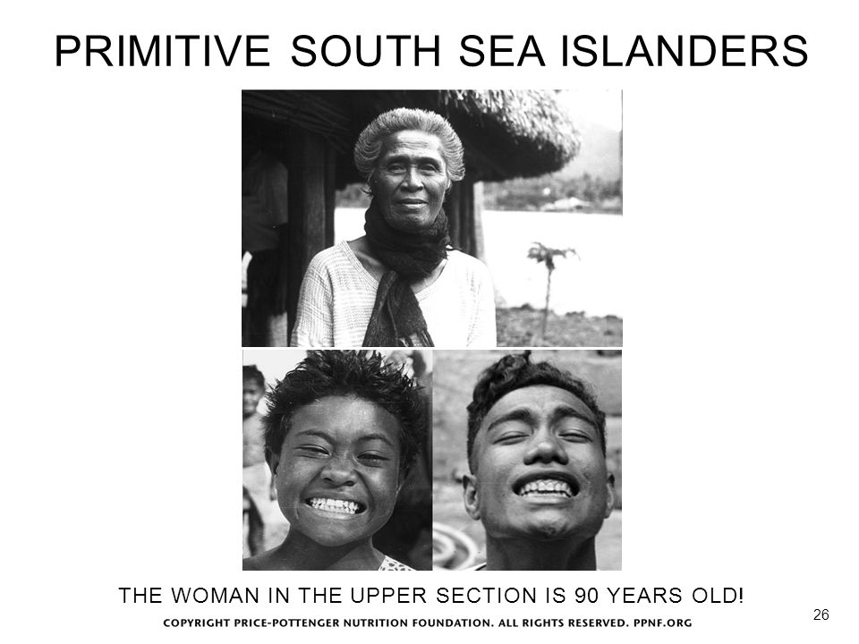 PRIMITIVE SOUTH SEA ISLANDERS 26 THE WOMAN IN THE UPPER SECTION IS 90 YEARS OLD!