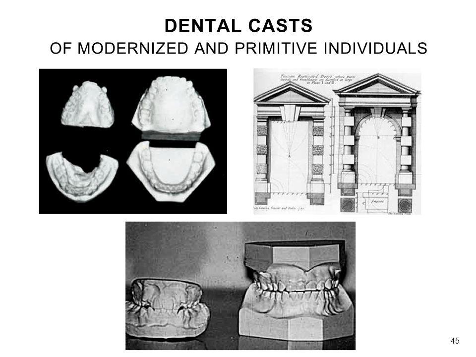 DENTAL CASTS OF MODERNIZED AND PRIMITIVE INDIVIDUALS 45