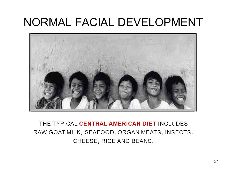 NORMAL FACIAL DEVELOPMENT THE TYPICAL CENTRAL AMERICAN DIET INCLUDES RAW GOAT MILK, SEAFOOD, ORGAN MEATS, INSECTS, CHEESE, RICE AND BEANS. 57