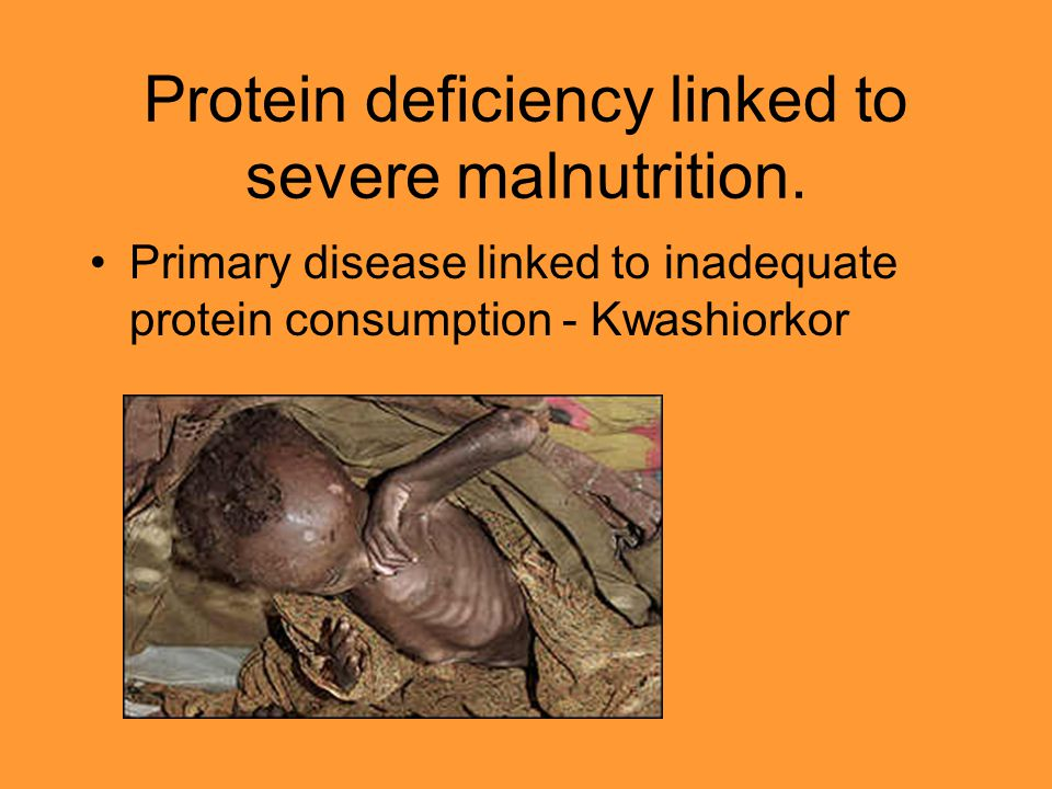 Protein deficiency linked to severe malnutrition. Primary disease linked to inadequate protein consumption - Kwashiorkor