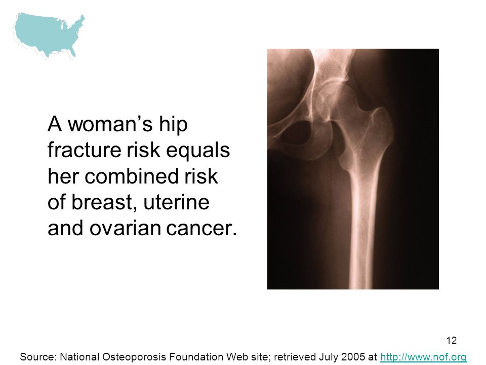 12 A womans hip fracture risk equals her combined risk of breast, uterine and ovarian cancer. Source: National Osteoporosis Foundation Web site; retri