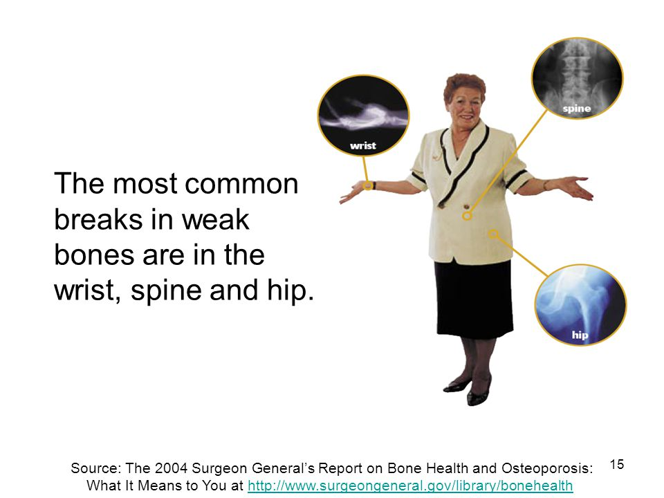 15 The most common breaks in weak bones are in the wrist, spine and hip. Source: The 2004 Surgeon Generals Report on Bone Health and Osteoporosis: Wha