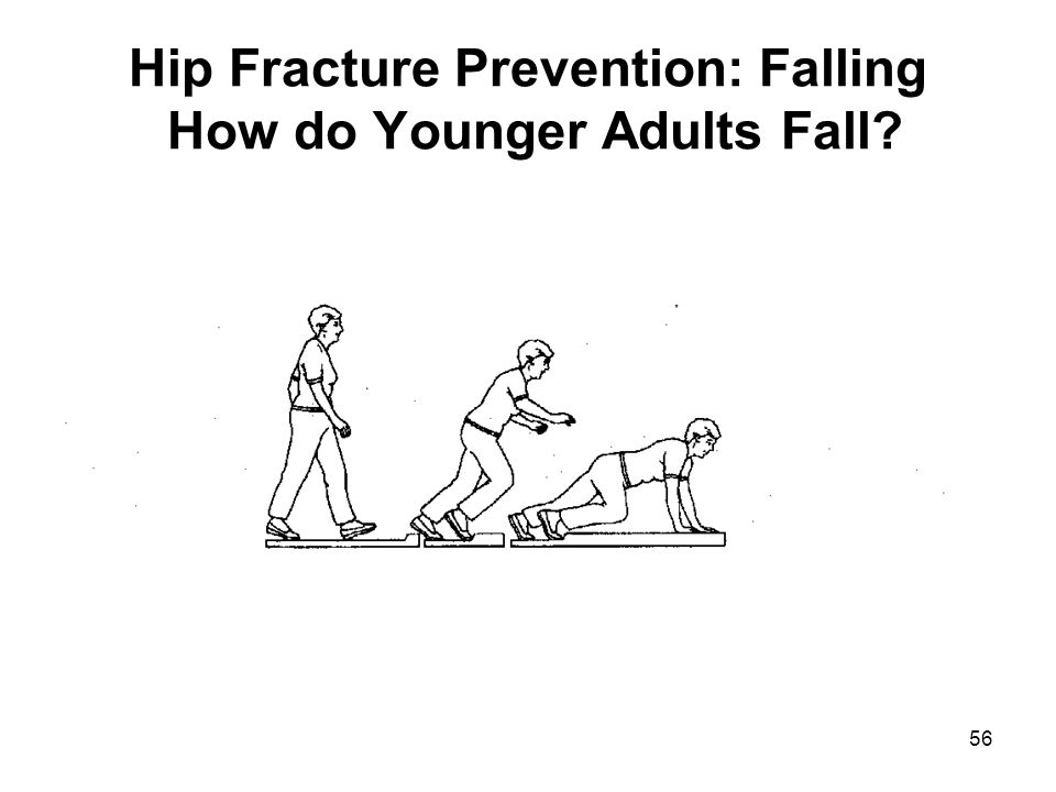 56 Hip Fracture Prevention: Falling How do Younger Adults Fall?