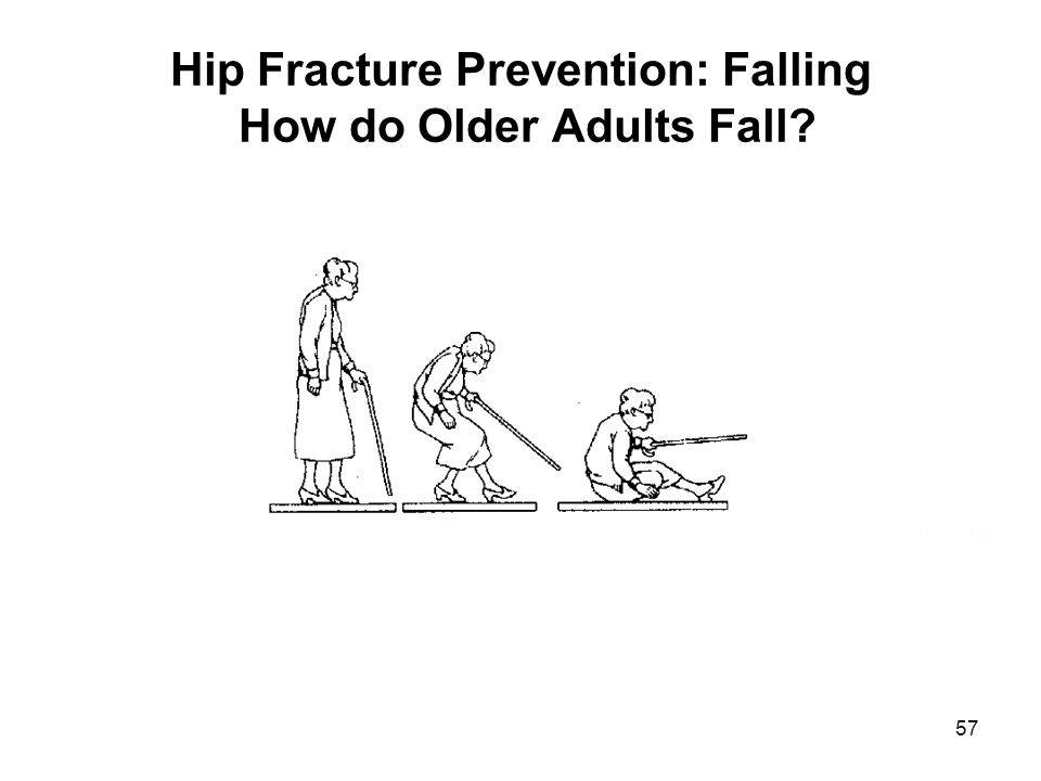 57 Hip Fracture Prevention: Falling How do Older Adults Fall?